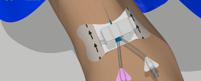 Clik-FIX PICC/Central Catheter Securement Device